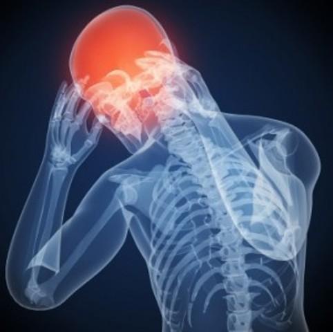 migraines3