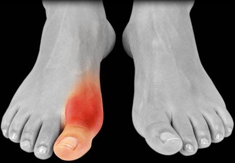gout patient photo1