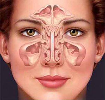 chronic sinusitis 1525276_784108754948378_1930924099_n