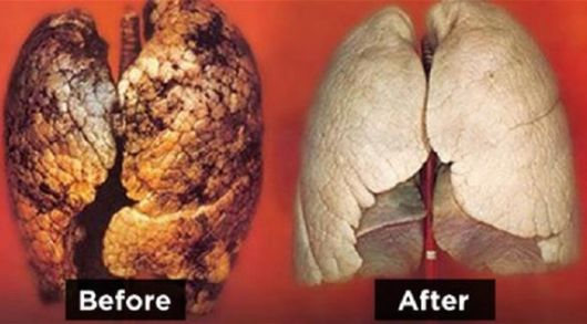 lungs-before-after