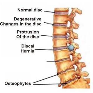osteochondrosis2-298x300