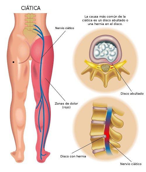 sciatica-remedies