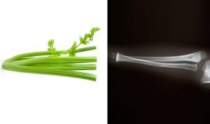 celery-bones