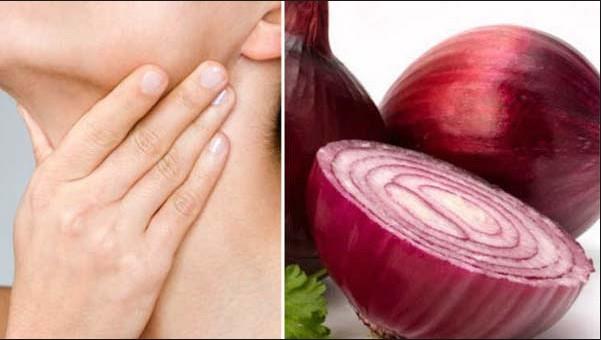 thyroid-red-onion