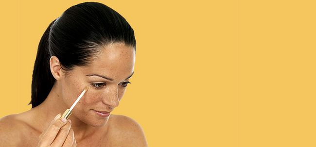 dark-spots-remedies