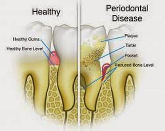 gum-disease-4-remedies