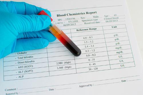 liver-blood-test