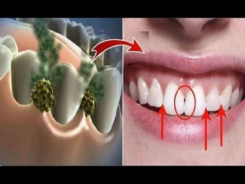 bad-breath-remedy