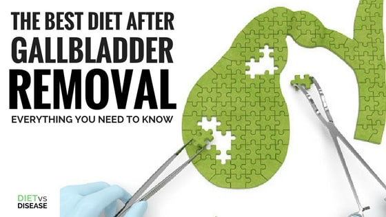 gallbladder-diet