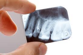 Рентгеновите снимки на зъбите свързани с тумори в мозъка