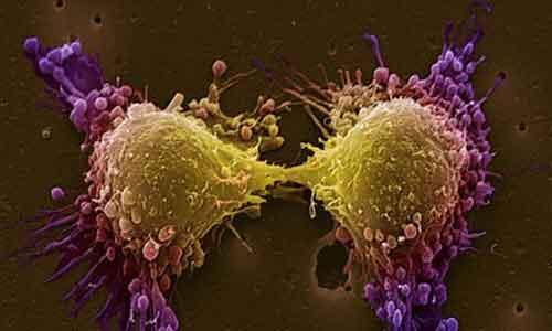 Важна крачка към побеждаването на рака