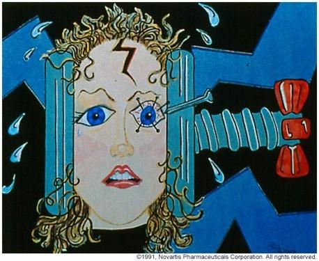 Серотонин срещу главоболие, всичко отново е в мярката