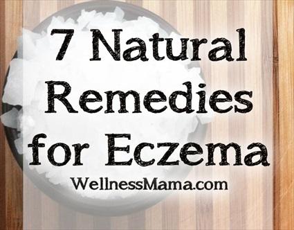 Екзема, 7 естествени лека