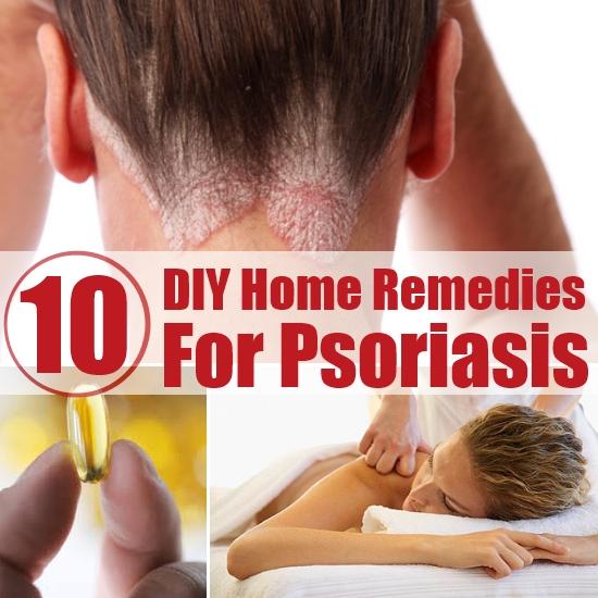 Psoriasis-Home-Remedies