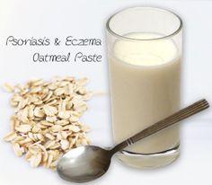 Псориазис & екзема – органично лечение с домашно приготвени хомеопатични лекове