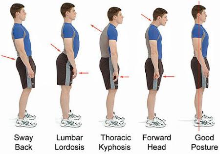 Подобрете стойката си и намалете болката лесно