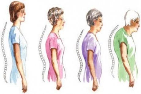 straighten-your-spine-1-1-s-307x512