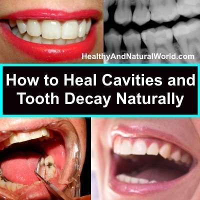 Естественото лечение на зъбни кариеси е възможно, вижте как