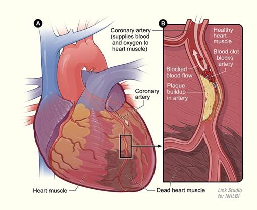 heart-information_clip_image004