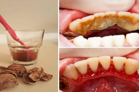 Две съставки ви отървават от зъбния камък завинаги – резултатите са невероятни!