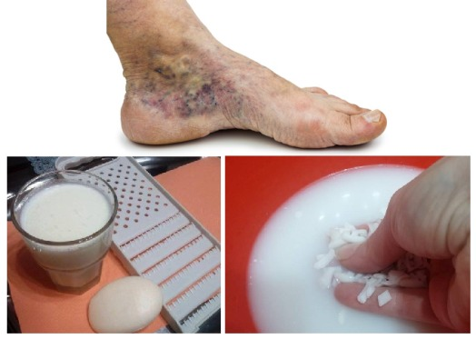 magical-recipe-for-varicose-veins-and-thrombosis-with-only-2-simple-ingredients-1