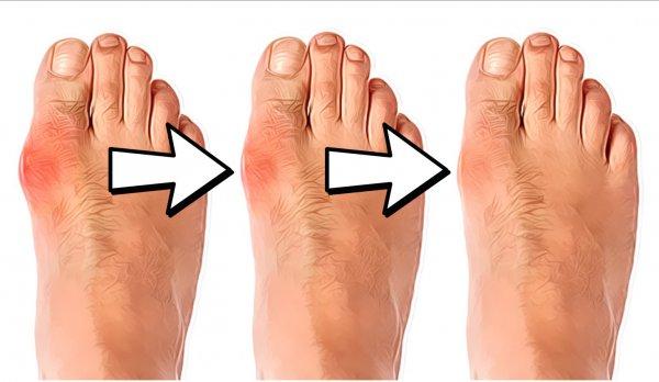 6 лека ви спасяват от кокалчетата на крака, ефикасни са и за шиповете и ставните болки