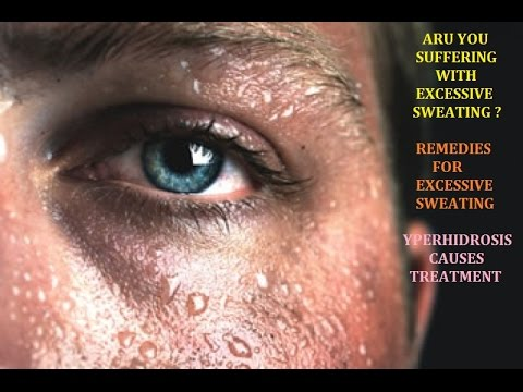 exessive-sweating