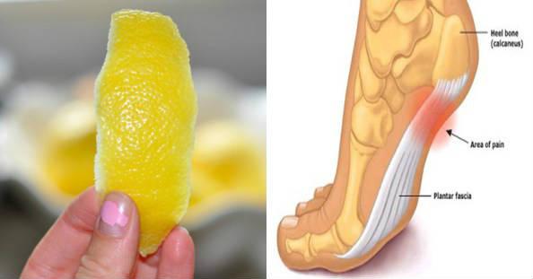 Кората на лимона премахва ставните болки завинаги