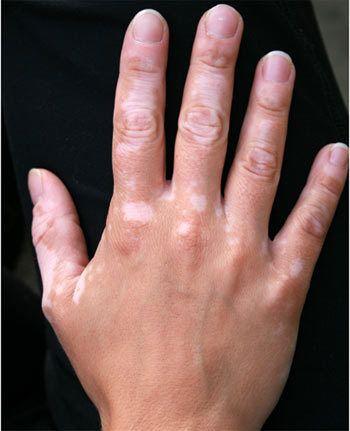 Витилиго: Естествени лекове за премахване на белите петна по кожата