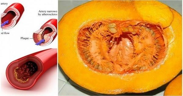 Сведете вредния холестерол, кръвната глюкоза, липидите и триглицеридите в кръвта си до нормални стойности веднага