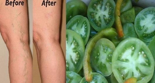varicose-veins-green-tomatoes