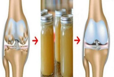 bones-knees-joints