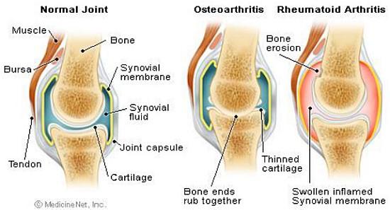 Най-добрият лек за артрит, ревматизъм и ставни проблеми