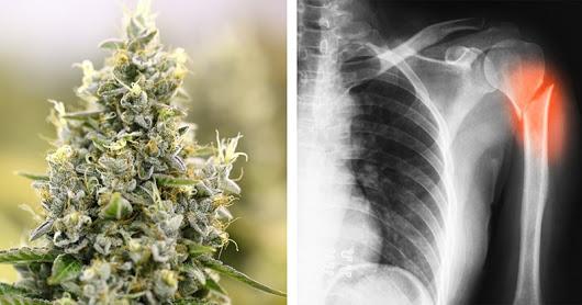 Учени отриха че марихуаната помага за заздравяването на счупени кости & дори ги прави по-здрави