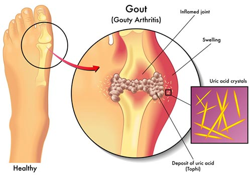 Gout-Treatment-Specialist-NYC