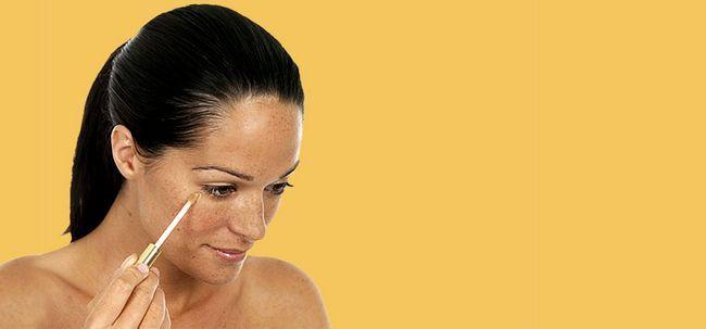 10 домашни лека за излекуване на тъмните петна по кожата