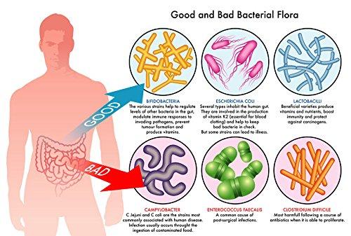 Заболявания причинявани от нездравословните стомашни бактерии