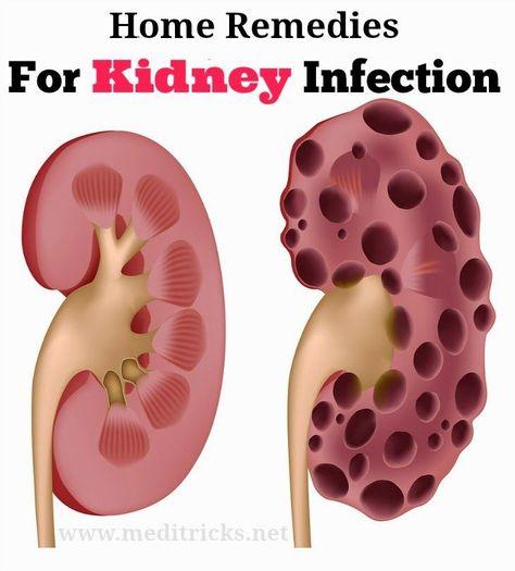 Как естествено да лекуваме бъбречни инфекции, 18 ефикасни домашни лека