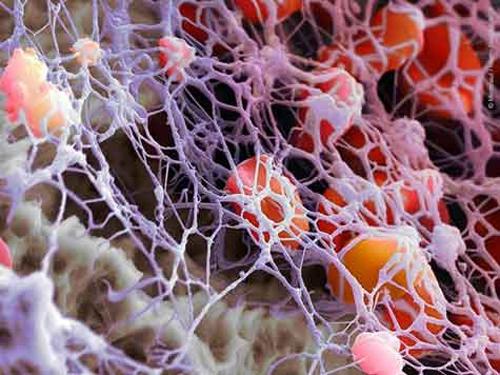 Ензими срещу фиброза, белези, келоиди, заболявания на белия дроб и рак