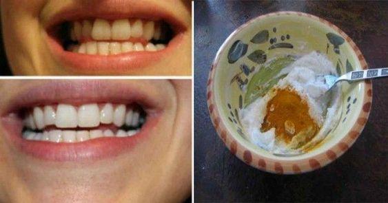 Противовъзпалителна паста за зъби с куркума избелва зъбите и спасява от заболявания на венците и вредни бактерии