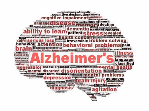 Започнете да снижавате риска си от Алцхаймер още днес с тези две стъпки