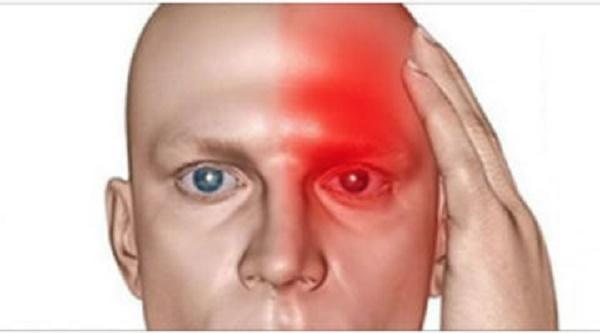 Защо замъгленото зрение значително повишава риска ви от инсулт?