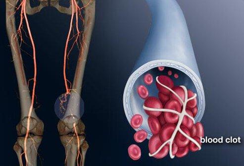 Накарайте риска си от разширени вени и кръвни съсиреци да изчезне, 6 начина