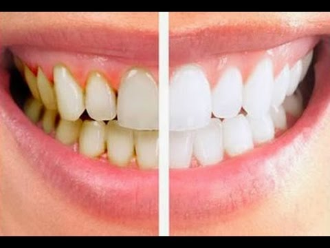 Натурален трик х 3 за бързо и ефикасно премахване на зъбния камък у дома