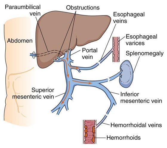 Порталната хипертония може да увреди черния ви дроб